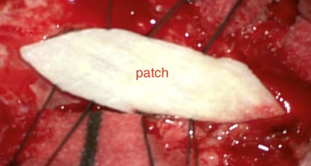 To enlarge the dura, a patch of connective tissue material is used.