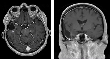 glioblastoma multiforme 2.5 years later
