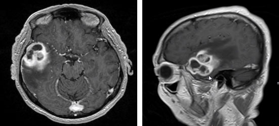 glioblastoma multiforme that caused headaches and behavior changes