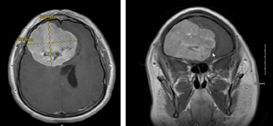 Meningioma causing compression and shifting of both frontal lobes