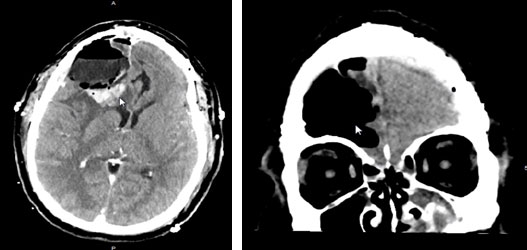 Post-operative CT imaging shows complete resection of the tumor