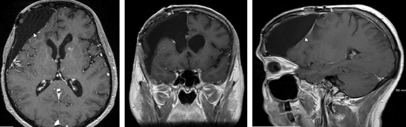 MRI Mixed Oligodendroglioma-Astrocytoma patient 7 years after treatment