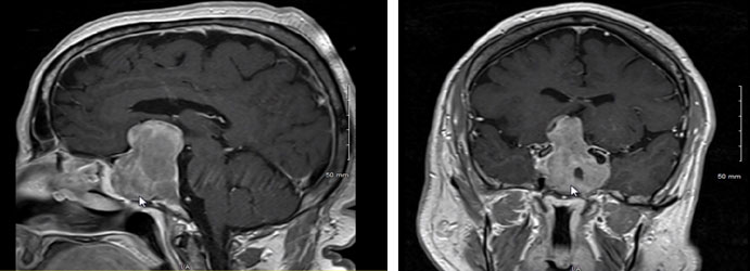 very large pituitary tumor